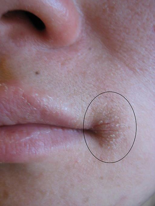 angular cheilitis